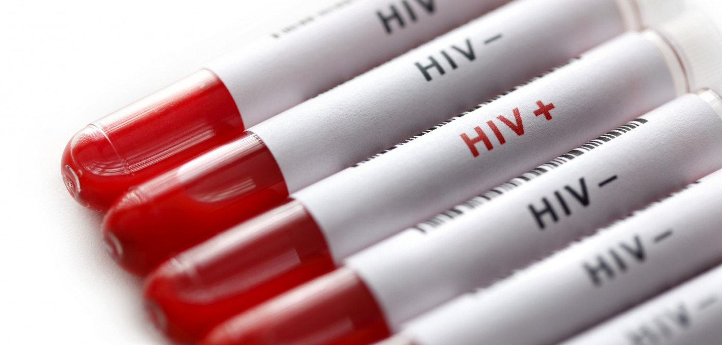Image result for hiv