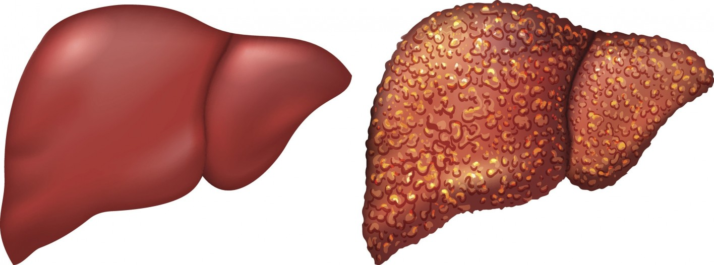 The Importance of Taking Cirrhosis Medications; Hepatitis ...