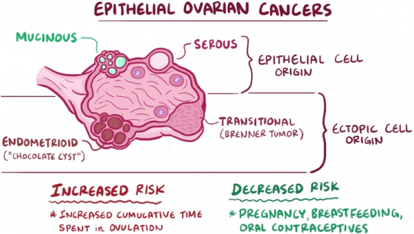 New Progress Toward Personalized Therapy For Ovarian Cancer Cancer Health