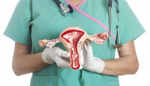 Ovarian Cancer Cancer Health