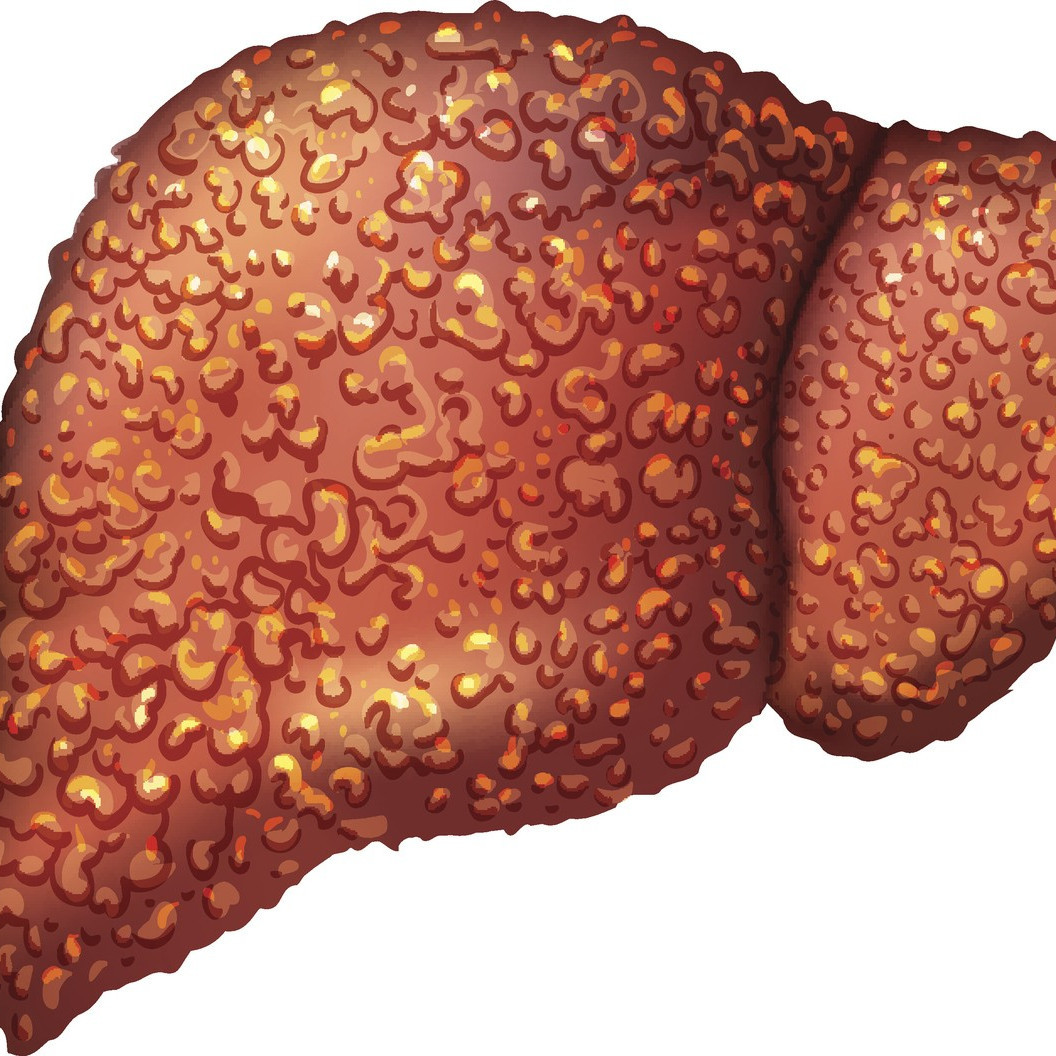 Cirrhosis is an advanced stage of scarring and damage of the liver Find out about symptoms and treatment of this lifethreatening liver condition